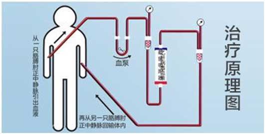 治疗效果: 1.使用先进的国外分子筛技术,对全身的血液进行过滤,将血液中的乙肝病毒大幅度地吸附截留,然后过滤掉血液中的病毒,再将无病毒的血液回输体内. 2.乙肝病毒血液截留吸附系统打破病毒复制模板,是病毒无法精心复制繁衍. 3能够快速减少病毒在体内的负荷,减少不应答性. 4.能都减少肝损害与肝硬变的几率.